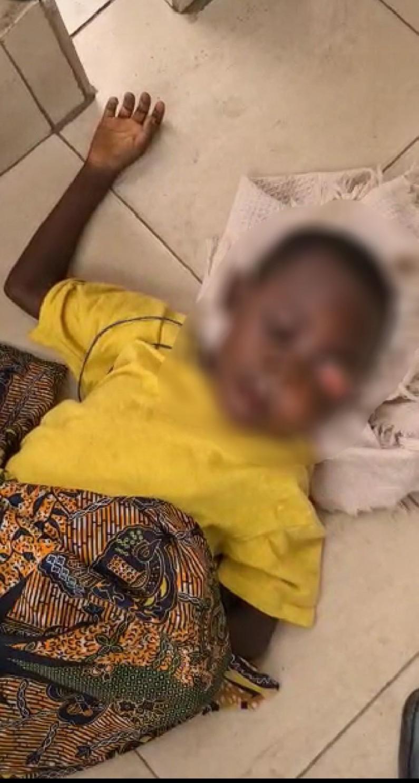 SOS pour un enfant de Matadi qui souffre énormément d'un œil qui sort de son orbite